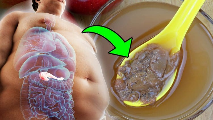 How To Use Apple Cider Vinegar For Weight Loss And Reduce Belly Fat