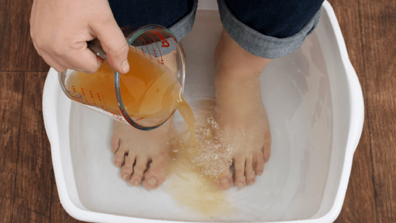 Image result for Apple Cider Vinegar Get Rid of Foot Odor