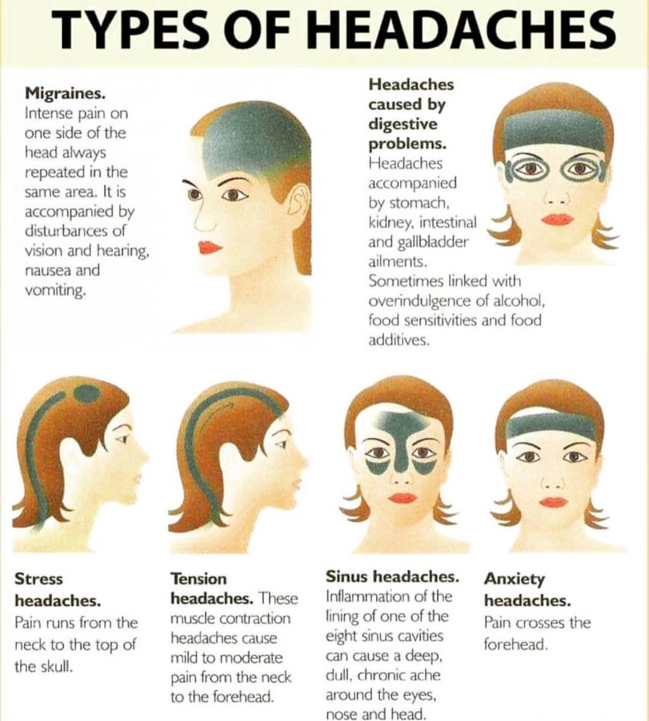 what type of headaches are there
