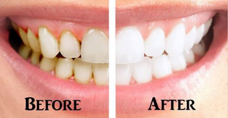 Fight Gum Disease With This DIY Toothpaste